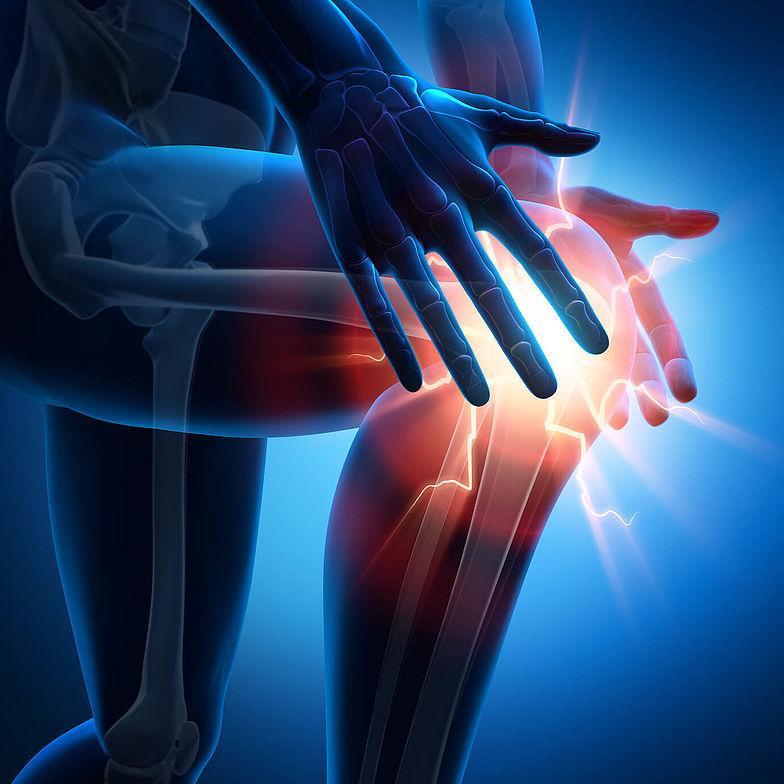Therapiemöglichkeiten bei Knieschmerzen