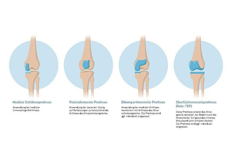 Knieprothese   Definition, Arten, Operation, Reha